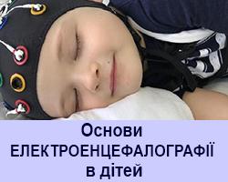 Основи електроенцефалографії в дітей